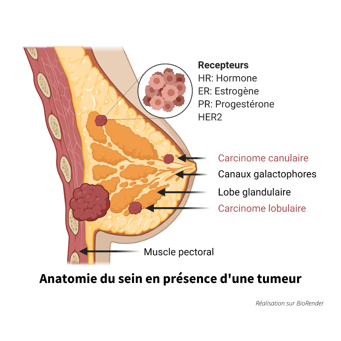 anatomie d'un sein en présence d'une tumeur